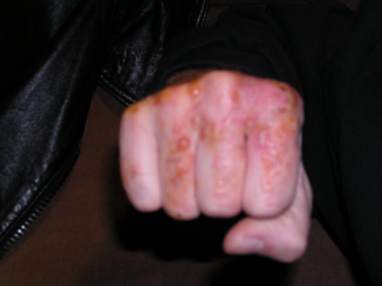 poison oak blisters