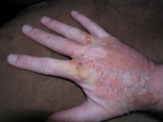 history of poison oak healing